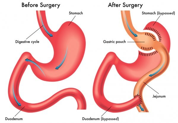weight loss surgery abroad